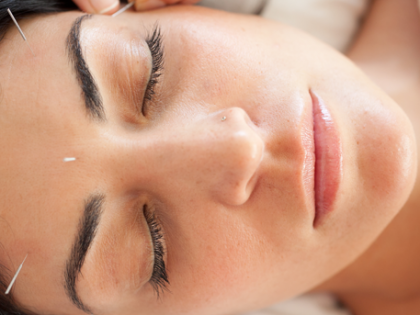 nieuw bij LOFT: gezichtsacupunctuur